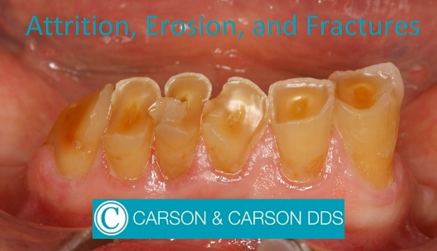 Dental Attrition, Erosion, and Abfracture