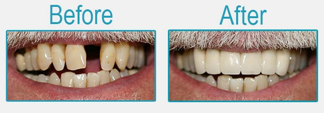 Dental bridges before and after 2