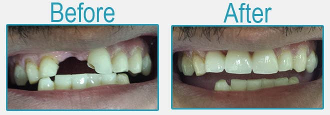 Dental bridges before and after 3