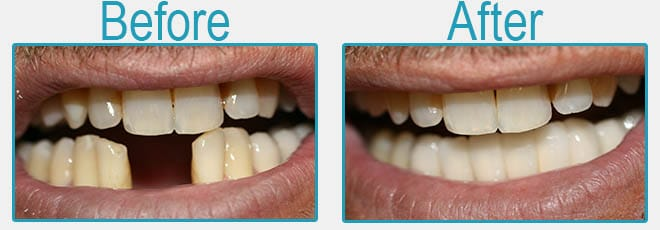 Dental bridges before and after 4