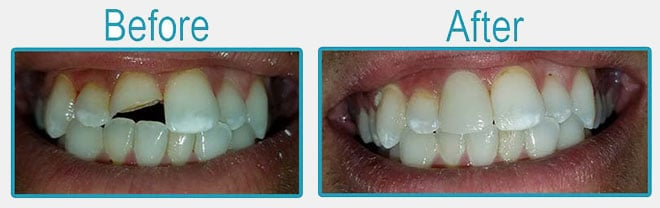 Before and After - Dental Crowns