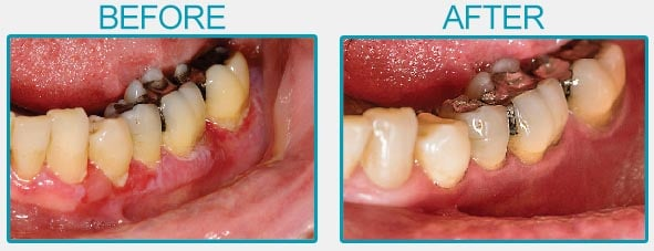 Dental Infection Before and After