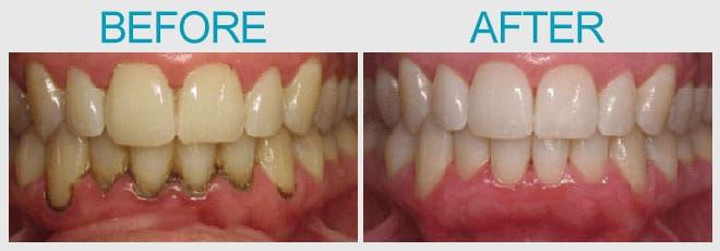 Before and After Tooth Whitening & Gingivitis