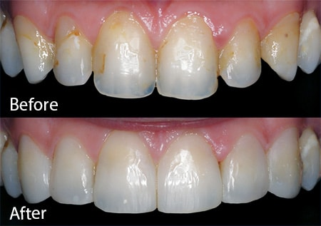 Tooth discoloration before and after contouring treatment. Carson & Carson, DDS in Oxnard, California.