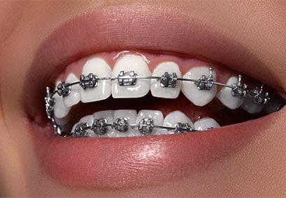 Braces on teeth