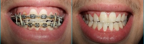 Traditional Metal Braces before and after