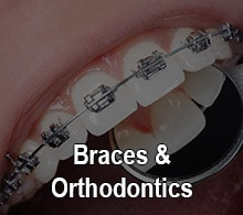 Closeup of braces installed at Oxnard Dentist office