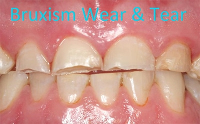 Bruxism or teeth grinding can cause serious wear to teeth.