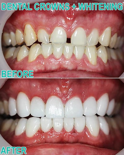 Crowns and whitening before & after