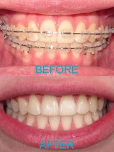 Ceramic Braces Before & After