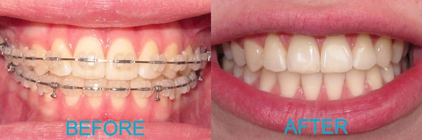 Before & after ceramic braces & whitening treatment.