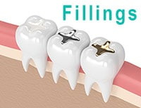 3D Dental Fillings graphic