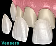 3D Dental Veneers graphic