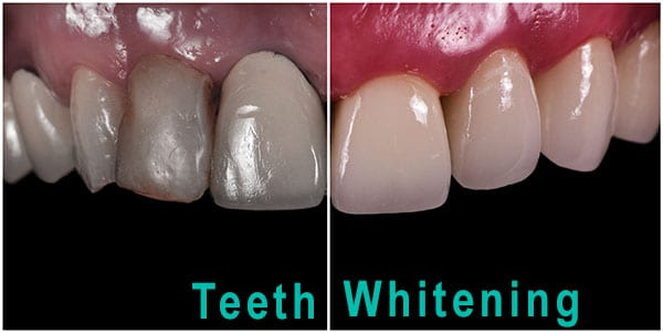 Teeth Whitening example
