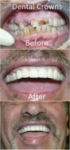 Dental Crowns before and after at Carson & Carson, DDS in Oxnard, California.