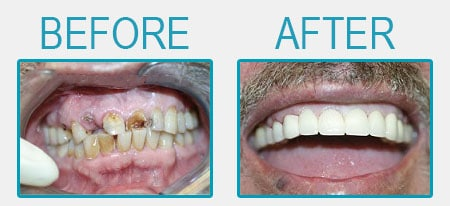Dental crowns cosmetic makeover
