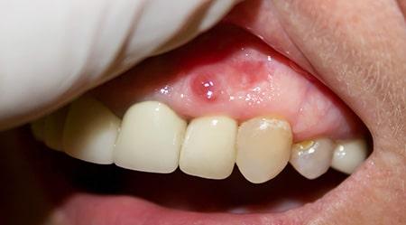 Periapical dental cyst