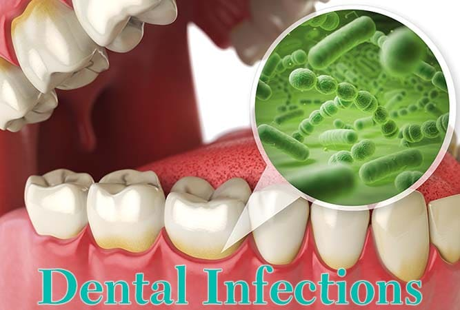 Plaque that can cause a dental infection