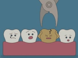 Tooth extraction animated image