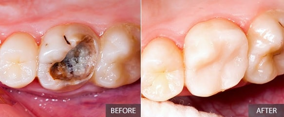 Dental Fillings before and after. Affordable fillings from Oxnard dentist Carson & Carson, DDS.