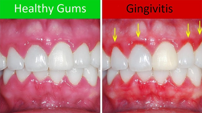 Damage from gingivitis.