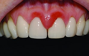 Red gums from gingivitis.