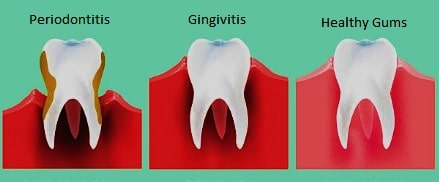 Digital examples of gum diseases Gingivitis and Periodontitis