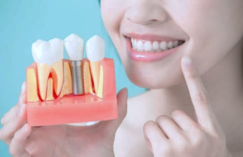 Affordable dental implants available from Oxnard dentist Carson & Carson, DDS.