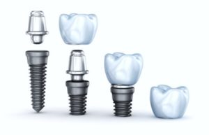 Breakdown of the parts of a dental implant & crown. Carson & Carson, DDS dentist in Oxnard, California.