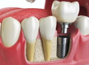 Dental implant model. Find affordable dental implants at Oxnard Dentist Carson & Carson, DDS.