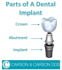 3 different parts of a dental implant: Implant, Abutment, & Crown. Find affordable dental implants at Carson & Carson, DDS in Oxnard, Calfornia.