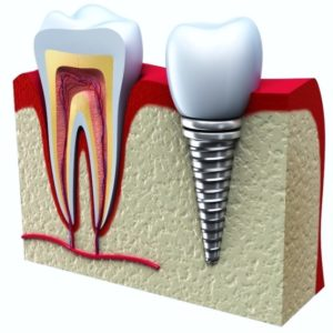 Natural Tooth VS Dental Implant graphic.
