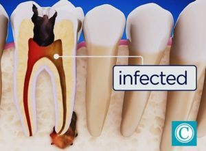 Infected tooth candidate for root ranal
