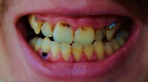 Unhealthy and discolored teeth. Infection of the gum