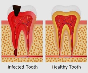 Infected tooth vs Healthy tooth comparison