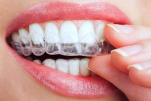 Removable and nearly invisible, Invisalign is an alternative treatment to braces for straightening teeth and is available at Oxnard Dentist Carson & Carson, DDS.