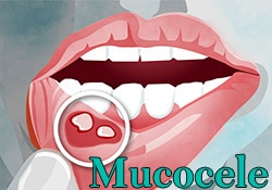 Mucocele (mucuous cyst) graphic
