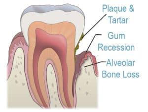 Periodontal bone loss and gum recession