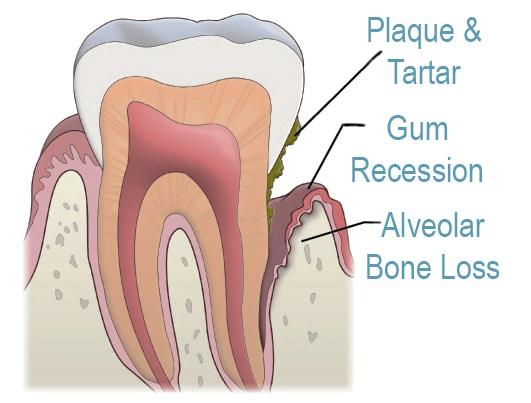 Periodontics - Gum Health & Disease Prevention - Carson & Carson, DDS