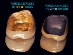 Porcelain-Fused Dental Crowns