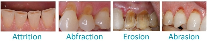 Differences between attrition, abfraction, erosion, and abrasion information at CarsonDDS.com