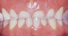 Bruxism (teeth grinding) can leave you with little to no teeth left.