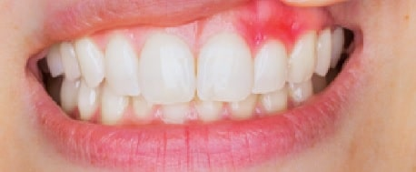 Gingivitis is the lesser and still fixable form of gum disease. Learn more about Periodontal disease at CarsonDDS.com