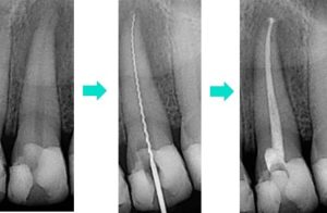 Tooth candidate for root canal, removal of tooth's root, filling after root removal