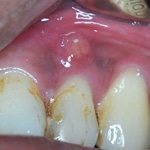 Dental Infection - Abscess