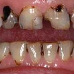 Cavities & Tooth Decay