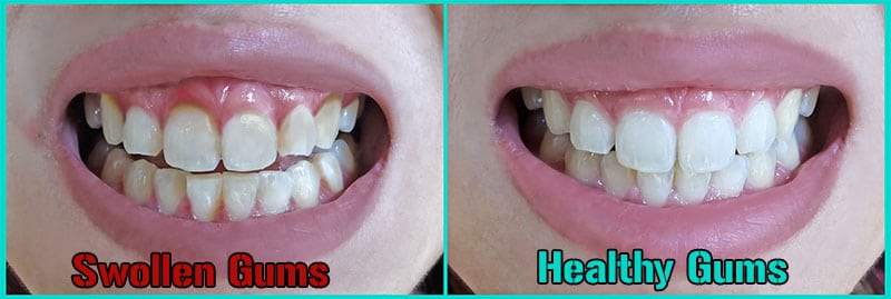 Swollen gums vs healthy gums comparison