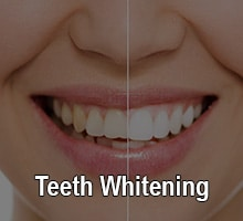 Before & after teeth whitening from Oxnard Dentist