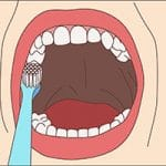 Brushing top tooth surface
