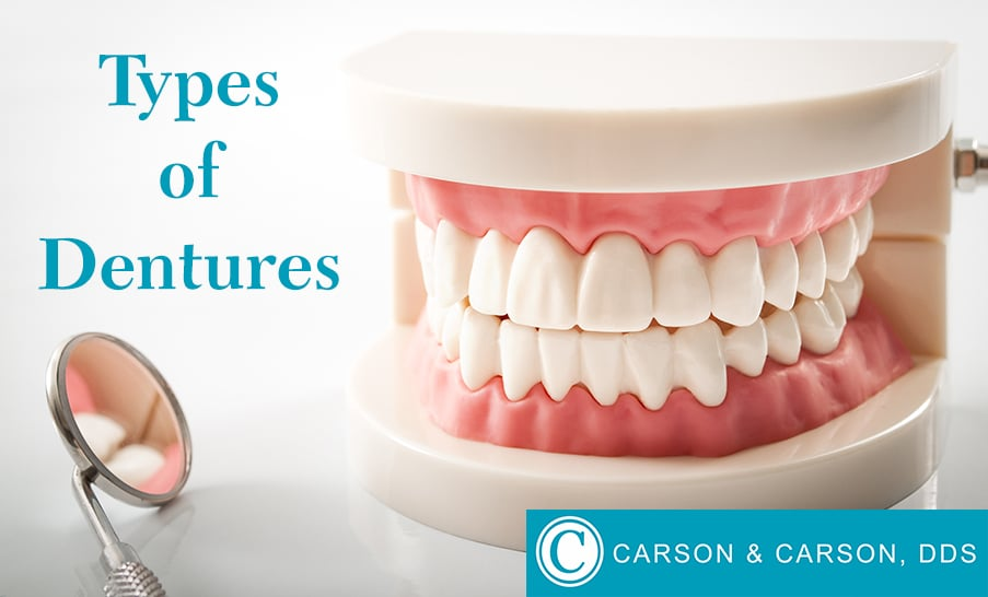 Set of Full Dentures